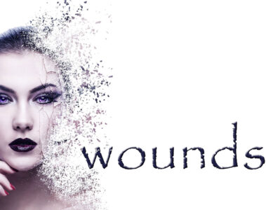 Wounds written by Jenn Hope at Spillwords.com